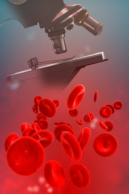Blood platelets and a microscope